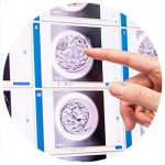 embryoscope in our fertility clinic